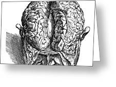 Vesalius: Brain, 1543 Greeting Card