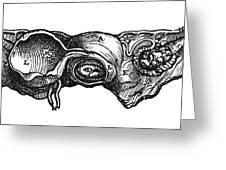 Vesalius: Uterus, 1543 Greeting Card