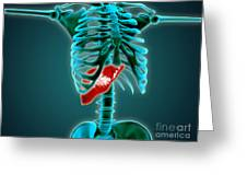 X-ray View Of Human Skeleton With Liver Greeting Card by Stocktrek Images