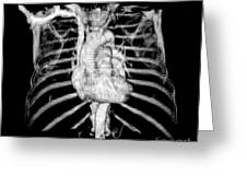 3d Ct Reconstruction Of Heart Greeting Card by Medical Body Scans