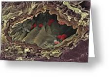 Artery Sem Greeting Card