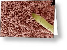 Aspergillus Fungus Spores, Sem Greeting Card