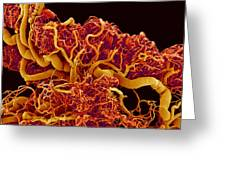 Blood Vessels In A Frog Ovary, Sem Greeting Card