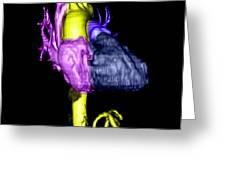 Color Enhanced 3d Cta Of Heart Greeting Card