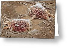 Dividing Cancer Cell, Sem Greeting Card by Steve Gschmeissner