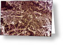 Dry Rot Fungus, Sem Greeting Card by Dr Jeremy Burgess