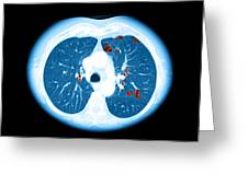 Emphysema On Ct Chest Greeting Card