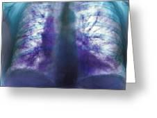 Fibrosing Alveolitis, X-ray Greeting Card