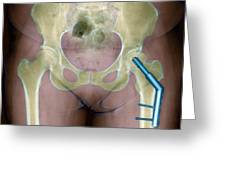 Fractured Femur Greeting Card by Du Cane Medical Imaging Ltd