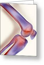 Healthy Knee, X-ray Greeting Card