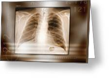 Heart And Lungs, X-ray Greeting Card