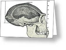 Homo Erectus Skull Greeting Card