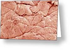 Human Skin, Sem Greeting Card