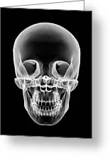 Human Skull, X-ray Artwork Greeting Card