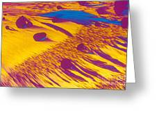 Lm Of Estradiol Greeting Card