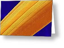 Marine Diatom Alga, Sem Greeting Card