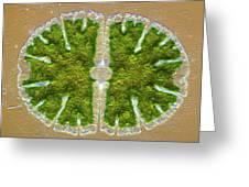 Microsterias Green Alga, Light Micrograph Greeting Card