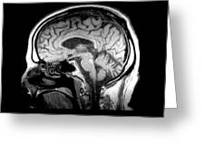 Mri Of Alcoholism Related Vermian Greeting Card