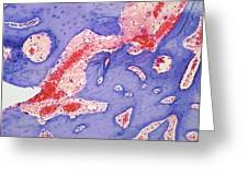 Osteoid Osteoma, Light Micrograph Greeting Card by Steve Gschmeissner