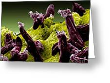 Plasmodium Gallinaceum, Sem Greeting Card by Science Source