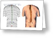Scoliosis Of The Back, Contour Map Greeting Card