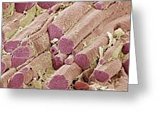Skeletal Muscle Fibres, Sem Greeting Card