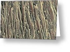 Spinal Cord, Sem Greeting Card