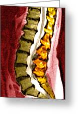 Spine Degeneration, Mri Scan Greeting Card by Du Cane Medical Imaging Ltd