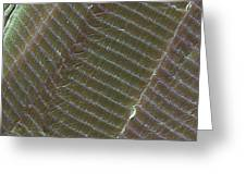 Striated Muscle, Sem Greeting Card