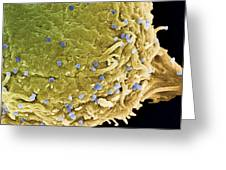 Vaccinia Virus Particles, Sem Greeting Card by Steve Gschmeissner