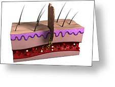 Wound Infection, Artwork Greeting Card