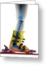 X-ray Of Broken Bones In Ski Boot Greeting Card