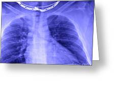 X-ray Of Enlarged Heart Greeting Card