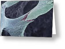 Osteoporotic Bone, Sem Greeting Card