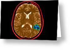 Mri Of Brain Avm Greeting Card
