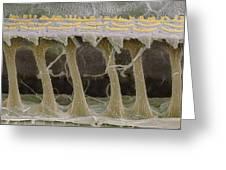 Inner Ear Hair Cells, Sem Greeting Card by Steve Gschmeissner