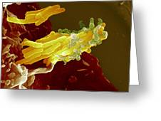 Bacteria Infecting A Macrophage, Sem Greeting Card by