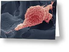 Cervical Cancer Cell, Sem Greeting Card by Steve Gschmeissner