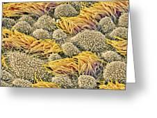 Fallopian Tube, Sem Greeting Card