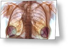 Breast Implants, X-ray Greeting Card