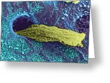 Coloured Sem Of A Secreting Uterine Gland Greeting Card