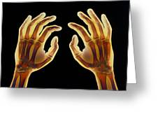 Coloured X-ray Of Healthy Human Hands Greeting Card