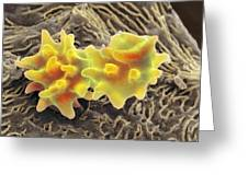 Crenated Red Blood Cells, Sem Greeting Card