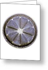 Fossil Diatom, Light Micrograph Greeting Card