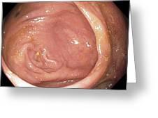Healthy Caecum, Large Intestine Greeting Card