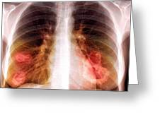 Lung Lesions, X-ray Greeting Card