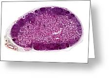 Lymph Gland, Light Micrograph Greeting Card