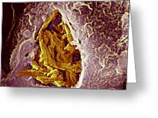 Macrophage Engulfing Tuberculosis Vaccine Greeting Card by