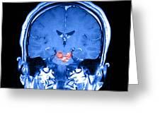 Mri Brainstem Cavernous Malformations Greeting Card
