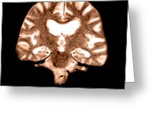 Mri Of Brain With Alzheimers Disease Greeting Card